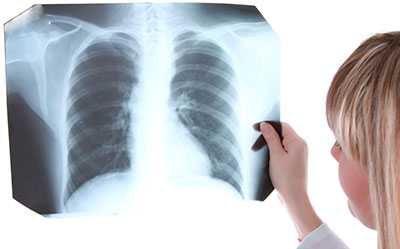 lung-xray